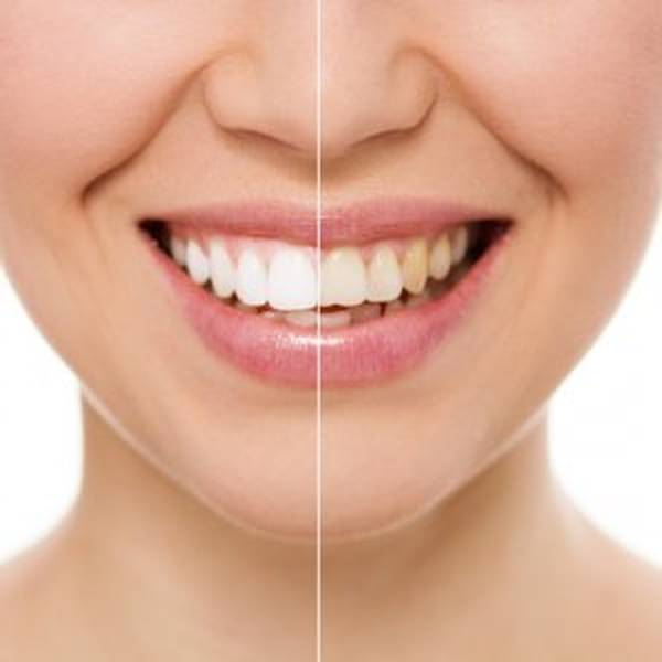 fournisseur blanchiment dentaire