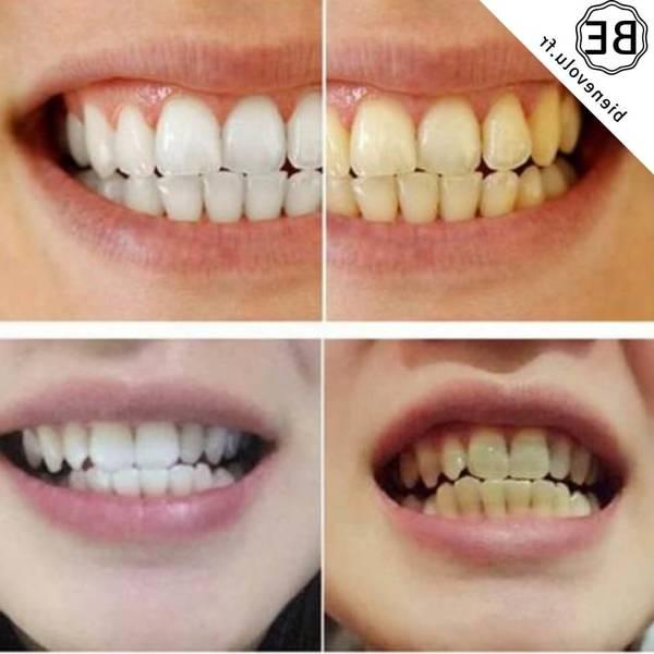 kit blanchiment dentaire 3d white