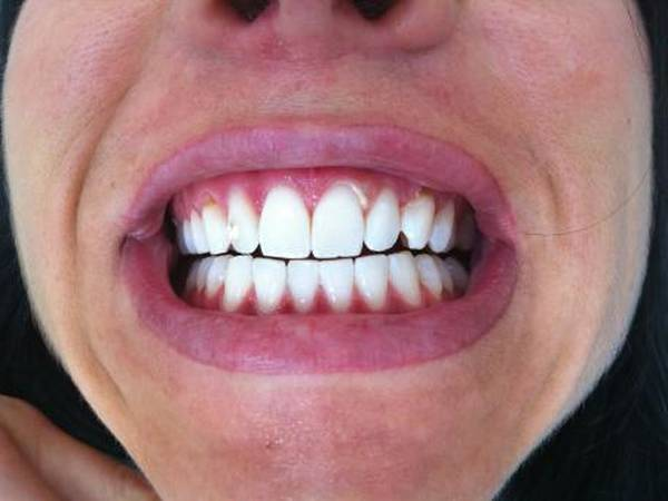 blanchiment dentaire avec gouttière
