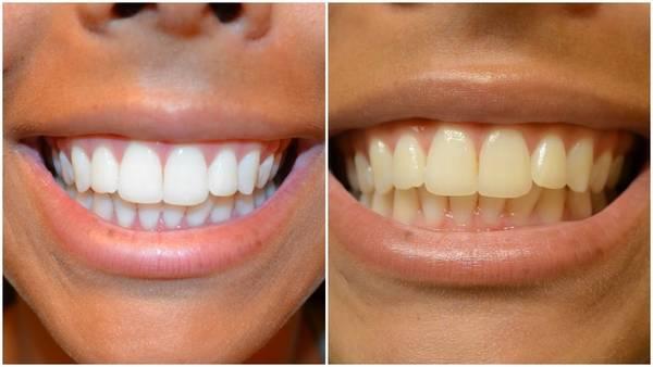 le blanchiment dentaire est il dangereux
