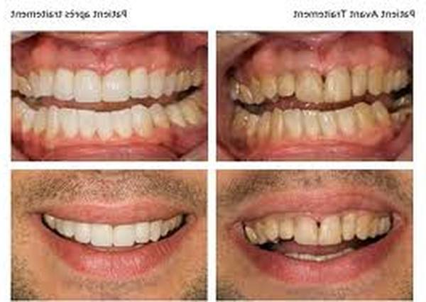 blanchiment dentaire forum