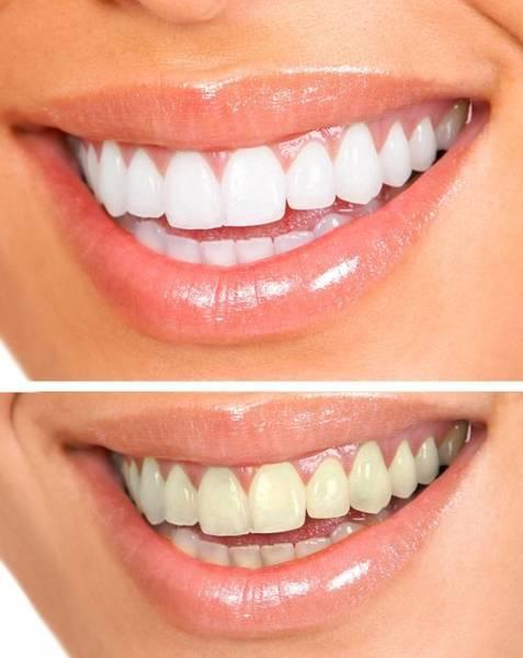 kit blanchiment dentaire sans peroxyde