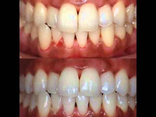 kit blanchiment dentaire pharmacie