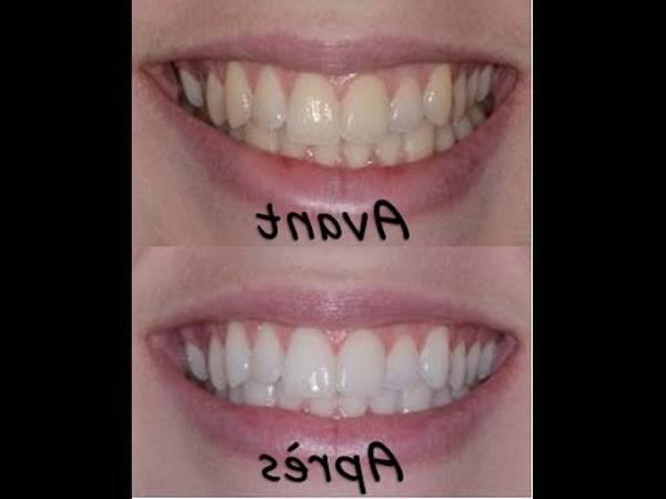 centre de blanchiment dentaire