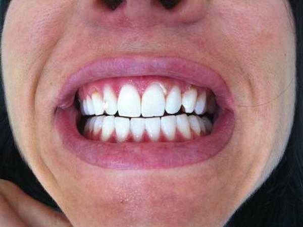 blanchiment dentaire charbon