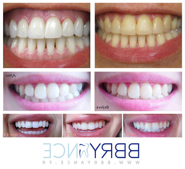 blanchiment dentaire uv